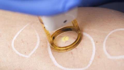 Laser therapy of varicose veins