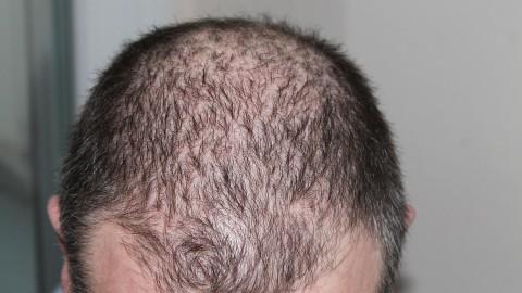 Лечение на косопад