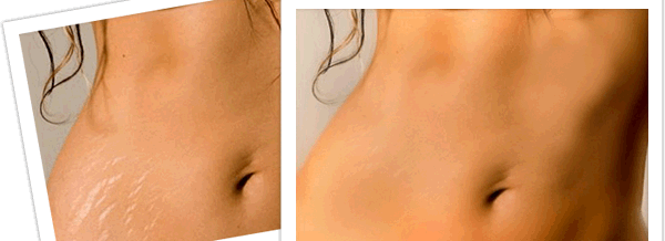 WHAT WE DO NOT KNOW ABOUT STRETCH MARKS - 6 INTERESTING FACTS
